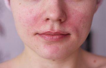 pelyhes vörös foltok az arcon, a bőrgyógyász előírása szerint