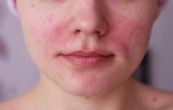 az arcmosás után vörös foltok jelennek meg